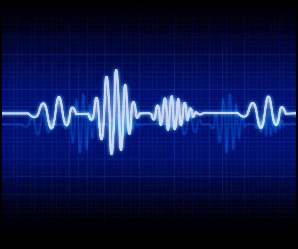 Wie unterscheiden sich Herzratenvariabilität und Herzfrequenz bzw. Herzrate?