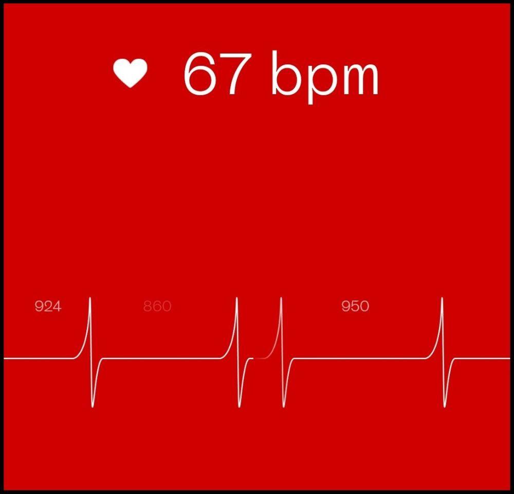 So sieht eine Herzratenvariabilitätsmessung in Welltory aus.